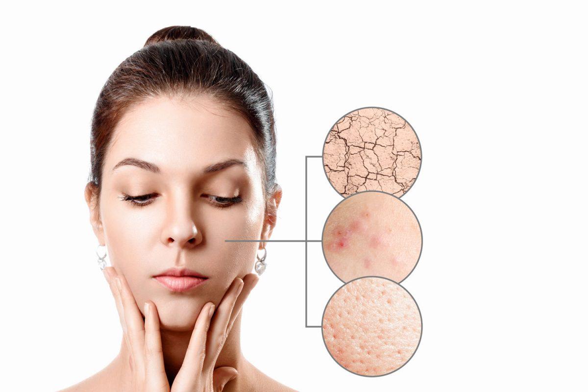 Shadeline traite la peau sensible, cica, réactive, acné, atopiques, bébé, anti-age, les muscles, femme enceinte, homme